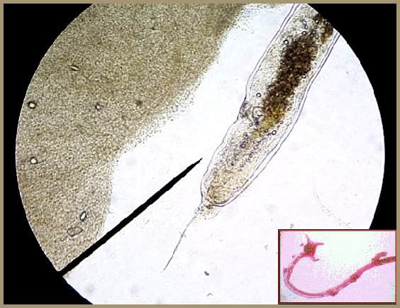 Anchor worms should be dabbed with turpentine which for Anchor worm on fish